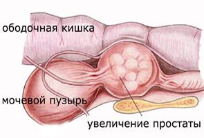 Методы и лекарства для лечения простатита